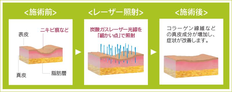 フラクショナルレーザー治療イメージ