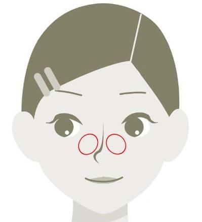 頬部において毛穴が開大しやすい部位