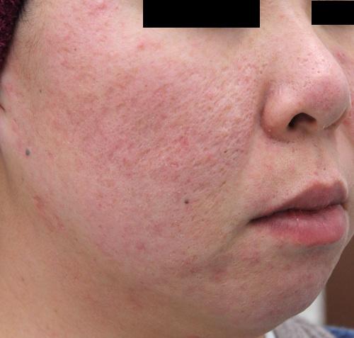 ニキビ痕(陥凹性瘢痕)の治療後