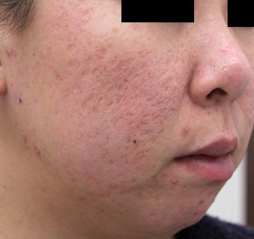 ニキビ痕(陥凹性瘢痕)の治療前