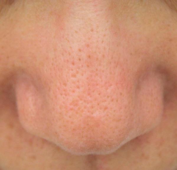 鼻の毛穴の開き:治療後