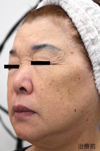 レーザーフェイシャル12回完了 After LaserFacial 12 Treatment-3