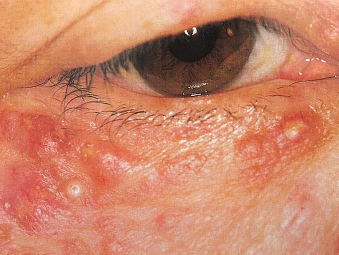 顔面播種状粟粒性狼瘡1