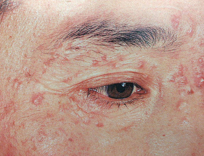 顔面播種状粟粒性狼瘡2
