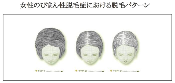 女性の薄毛治療薬のパントガール2