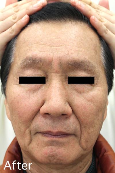老人性イボのレーザー治療 Before-After2