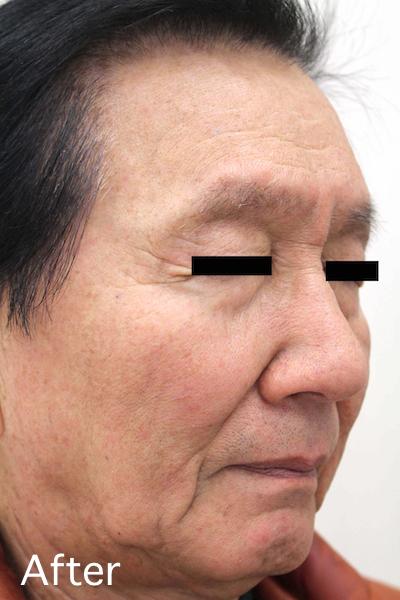 老人性イボのレーザー治療 Before-After4