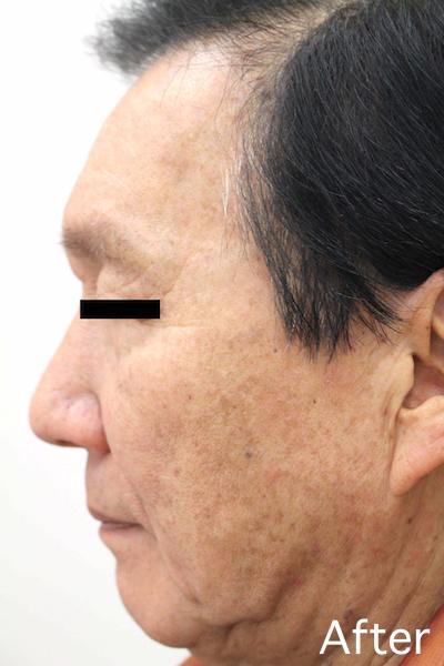 老人性イボのレーザー治療 Before-After6