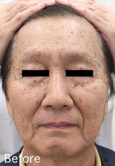 老人性イボのレーザー治療 Before-After1
