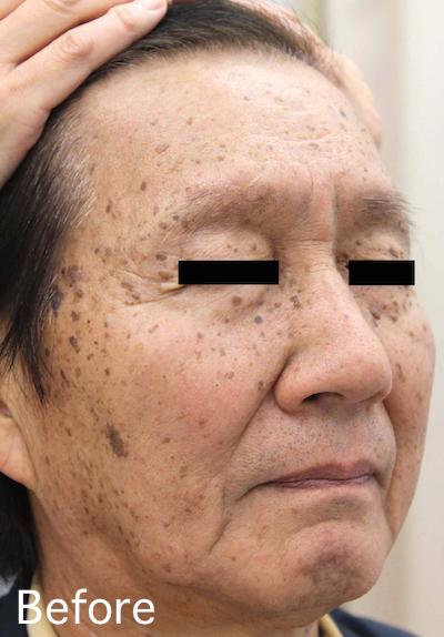 老人性イボのレーザー治療 Before-After3
