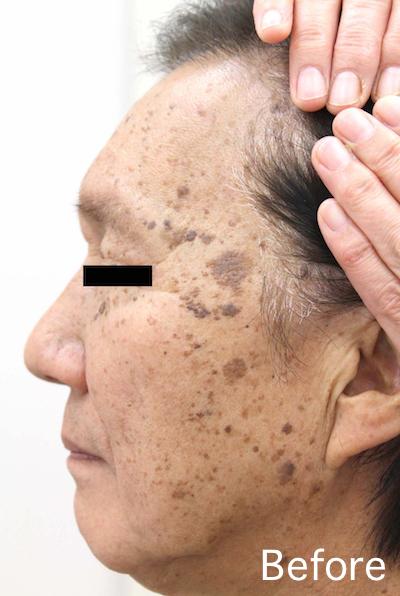 老人性イボのレーザー治療 Before-After5