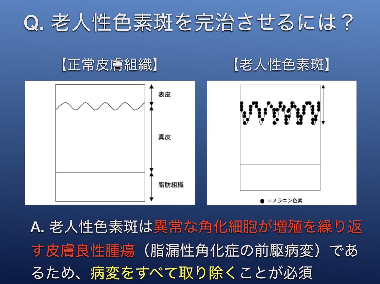 シネロンキャンデラ 高崎セミナー2019-3