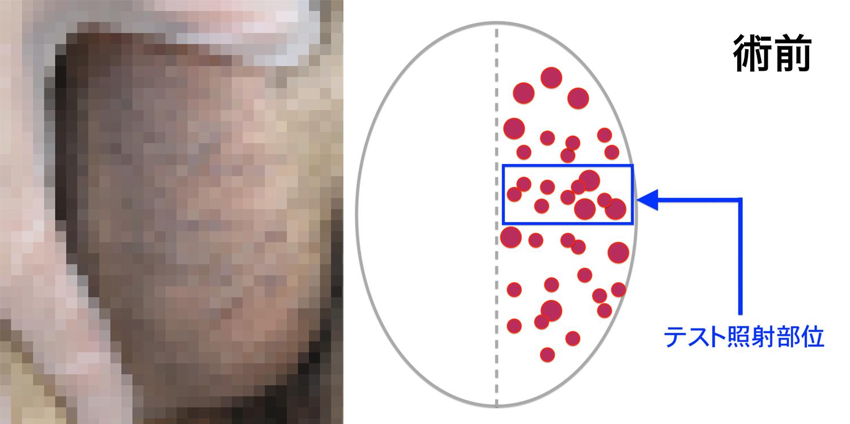 被角血管腫のBefore-After-1