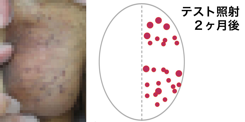 被角血管腫のBefore-After-2